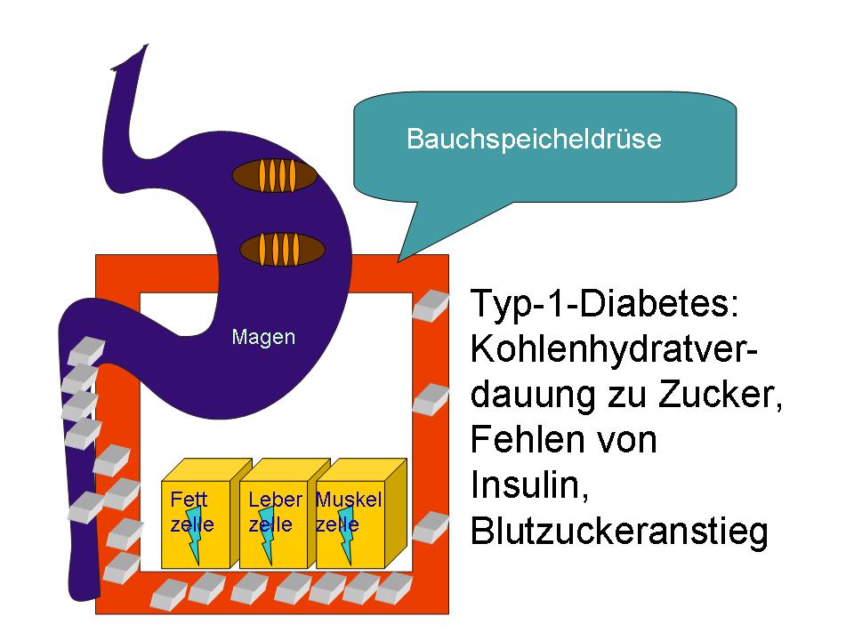 Diabetes-Typ-1